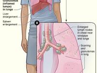 Sarcoidosis_signs_and_symptoms