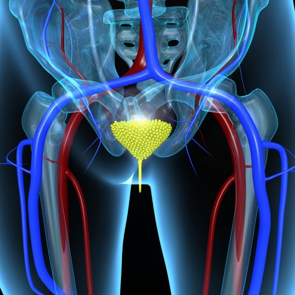 symptoms of bladder cancer in women