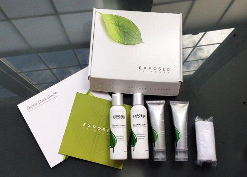 exposed acne treatment