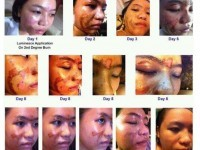 Stem Cell products